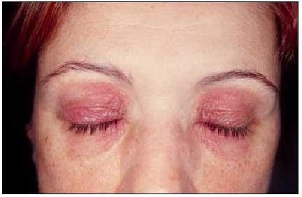 Que curar atopichesky la dermatitis al niño 3 años