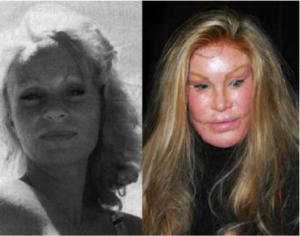 """Jocelyn Wildenstein, conocida también como """"mujer gato"""", ha gastado $4 millones en cirugías estéticas, incluyendo implantes para los pómulos y varios levantamientos faciales, según la revista americana Woman's Day. (Foto: Tomada/Woman's Day)"""