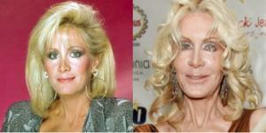 La actriz estadounidense de 70 años, Joan Van Ark, no ha dado a conocer la cantidad de cirugías que se ha realizado, pero su rostro sugiere que han sido varias, entre ellas levantamientos faciales, inyecciones de botox, implantes de pómulos, entre otras. (Foto: Tomada/ Business Insider)