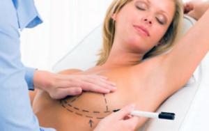 La recuperación de una cirugía estética de busto puede tardar entre 7 a 10 días. /Foto tomada de Bienestar 180.com