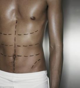 Los hombres que solicitan la liposucción en su mayoría son  los que tienen sobre peso o los comúnmente llamados 'metrosexuales'. / Foto tomada de La caidadelpelo.com